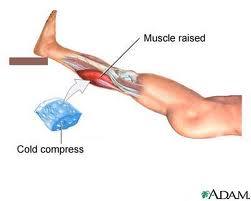 RICE procedure for a calf strain