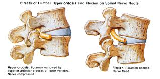 Hyperlordosis closing Facet Joints