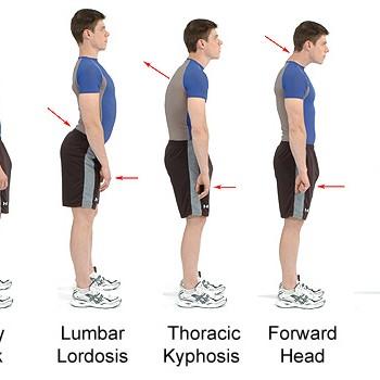 Good Posture and Lumbar Hyperlordosis