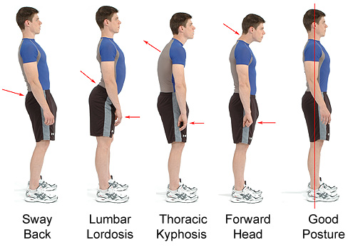 Good Posture and Lumbar Hyperlordosis