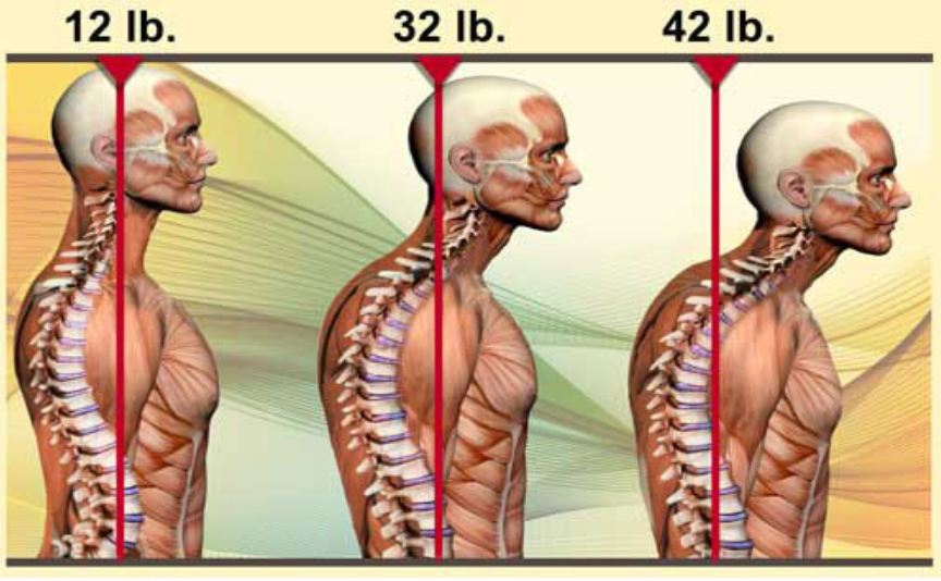 Consequence of weight through the spine with head forward position